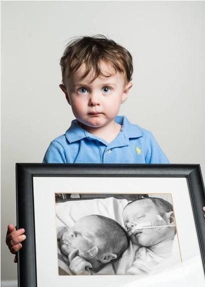 """Piętnaście potężnych zdjęć """"przed i po"""" wcześniaków"""