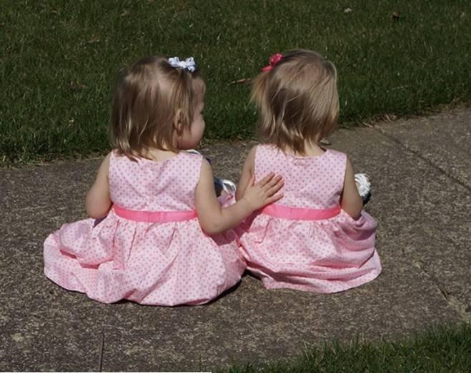 Bliźniaczki urodziły się, trzymając się za ręce
